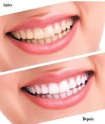 3- Siringa Clareamento Dental 44%