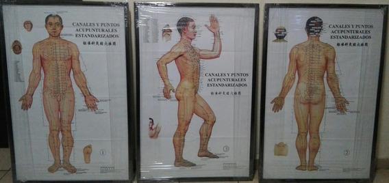 Poster Enmarcados De Acupuntura