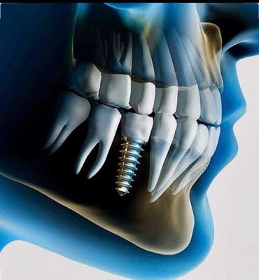 Implante Dental + Pilar + Corona De Porcelana!!