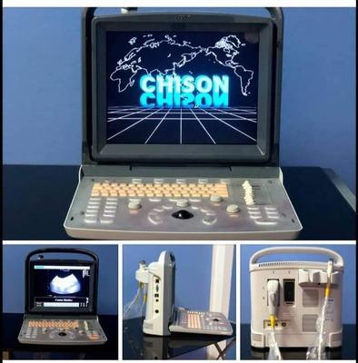 Ecografo Chison Eco1