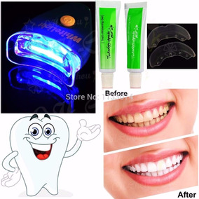 Blanqueador Dental , Plasma Con Rayo Laser Con 2 Tubos Gel
