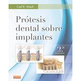 Prótesis Dental Sobre Implantes (spanish Edition); Carl E.