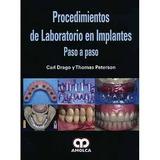Procedimientos D Laboratorio En Implantes