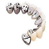 Liga De Porcelana Pors-on Plus Da Prótese Dentsply