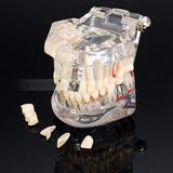 Implante Manequim Modelo Odontológico Estudo Macromodelo