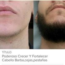 Poderoso Crece Barba Bigote Fortalece E Hidrata Abundante Si