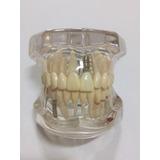 Manequim Modelo Odontológico Implantes Proteses Dentista @#g