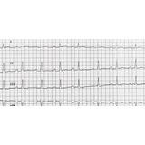 Electrocardiograma Informado Por Cardiólogo En El Lugar