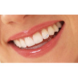 Piercing Para Dente Cor Cristal 1 Unidade
