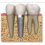 Implantes Dentales, Prótesis Fijas Y Removibles, Cirugias