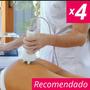 Ultracavitador /radiofrecuencia 4 Sesiones