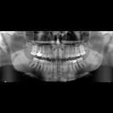 Radiografía Panorámica Dental Digital Rx Seriada Periapical
