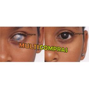 Pupilente Pupila Negra Prótesis Ocular Cosmético