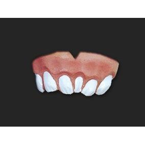 Dentadura Dente Torto - Engraçada - Frete R$ 8,50