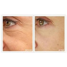 Serum Ácido Hialurônico - Efeito Botox Rejuvenescedor 30ml