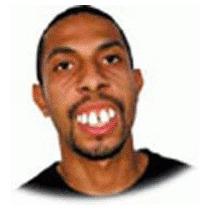 Dentadura Dentão Dentuço Ronaldinho - Frete R$ 8,50