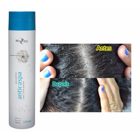 Shampoo Anti Caspa 300ml Mairibel Cosméticos