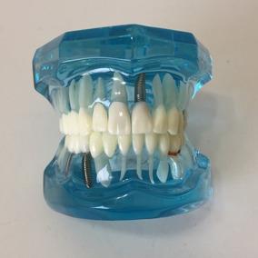 Arcada Dentária Demonstrativa Odontológica Dentes 025.074