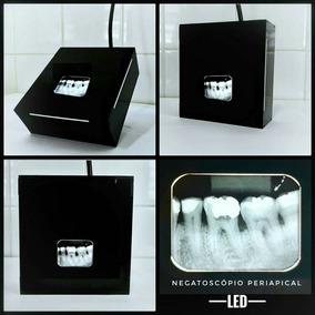 Negatoscópio Led Periapical Odontológico Para Fotografar Rx