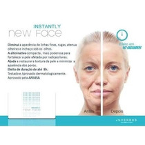 Instantly New Face ( Botox Instãntaneo )