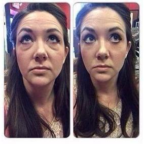 Reduzir Linhas De Expressão Creme Facial Para Rugas 10un Fa2