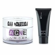 Kit Antiacné - Tratamiento Integral Para El Control Del Acné