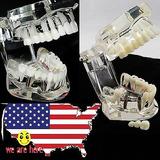 Transparente Modelo De Dientes Implantes Dentales Enfermedad