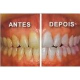 Caneta Clarear Dente Sem Moldera Clareador Dente Branco