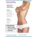 Tratamientos Anti Celulitis - Mesoterapia Carboxiterapia