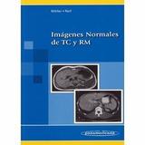 Imagenes Normales De Tc Y Rm, Mas Atlas De Bolsillos