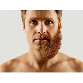 Loción Capilar Para Barba Y Cabello. 6 Meses 100 % Efectivo