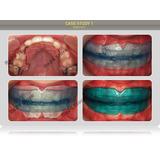 Ortodoncia Alinear Dientes Corrección Dental Brackets