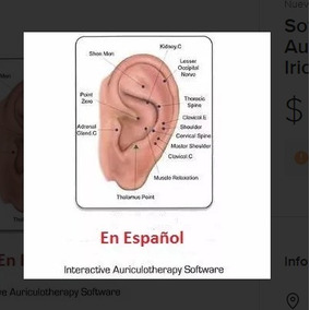 Softwares De Auriculoterapia 3d E Iridología