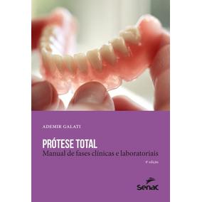 Protese Total - Manual De Fases Clinicas E Laboratoriais - 4