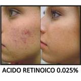 Acido Retinoico Crema 0.025 Acne Manchas Arrugas Cicatrices