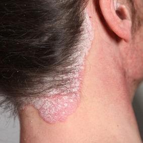 Formulación Magistral Para Psoriasis Y Vitiligo Garantizada