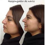 Corrector Nasal Nariz Bella Sin Cirugía Rulav Par