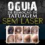 O Guia De Remoção De Tatuagem Sem Laser E Sem Dor
