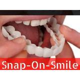 Snap On Smile Sorriso Perfeito