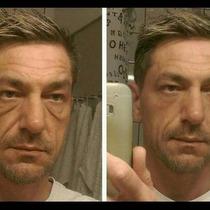 Creme Para Linhas De Expressão Rugas Na Boca Facial 10un Fa2