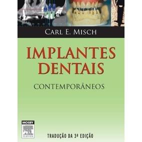 Implantes Dentais Contemporâneos, 3ª Edição + Brinde