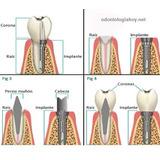 Perno Corona Porcelana Odontologia Rehabilitacion Estetica