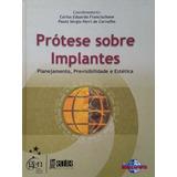 Prótese Sobre Implantes - Carlos Eduardo Francischone