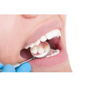 Dentistas! Paquete De Producto Aleman - Fresas De Diamante