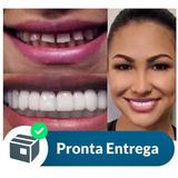Par Superior E Inferior Snap On Smile Dentes Postiços Dente