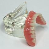 Manequim Modelo Odontológico Overdenture Implantes Novo