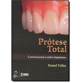 Protese Total Convencional E Sobre Implantes
