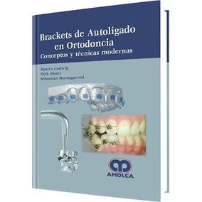 Libro: Brackets De Autoligado En Ortodoncia - Pdf