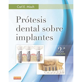 Prótesis Dental Sobre Implantes (spanish Edition); Carl E.