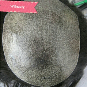 Protese Capilar Masculina Micropele